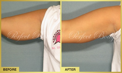 PERFECT BODY LASER CAVI-LIPO ARM REDUCTION