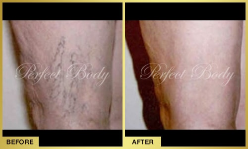 leg vein removal before after