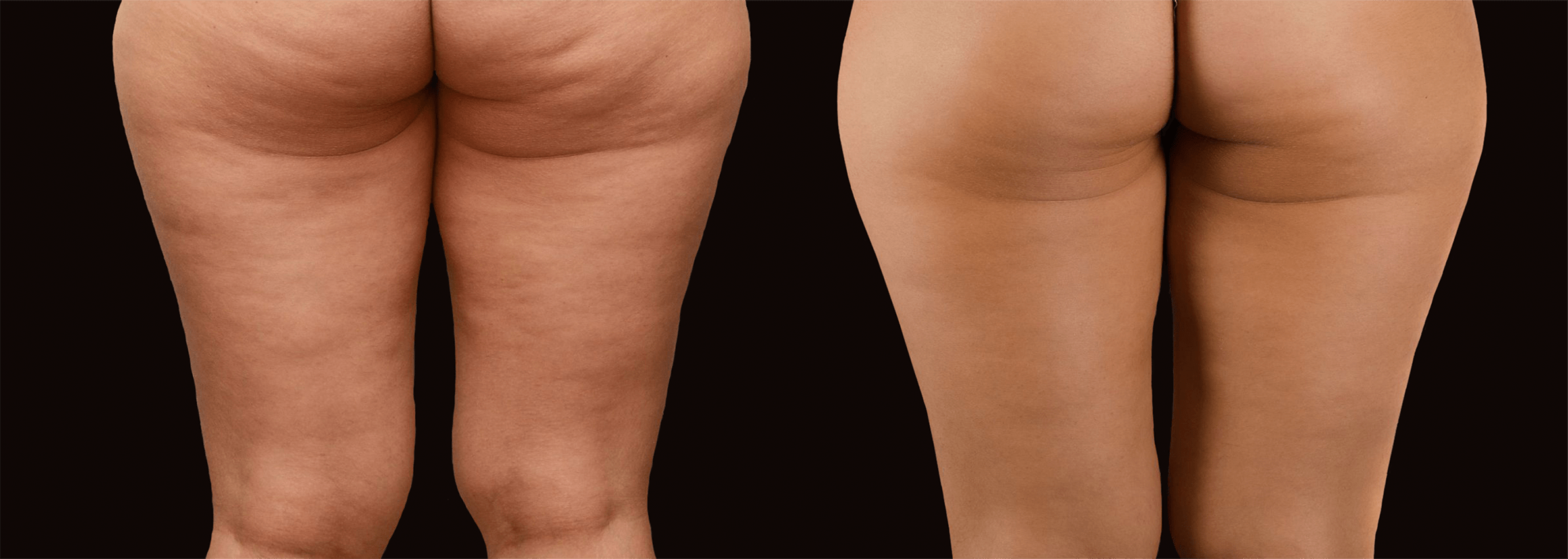 Long Island cellulite removal before after