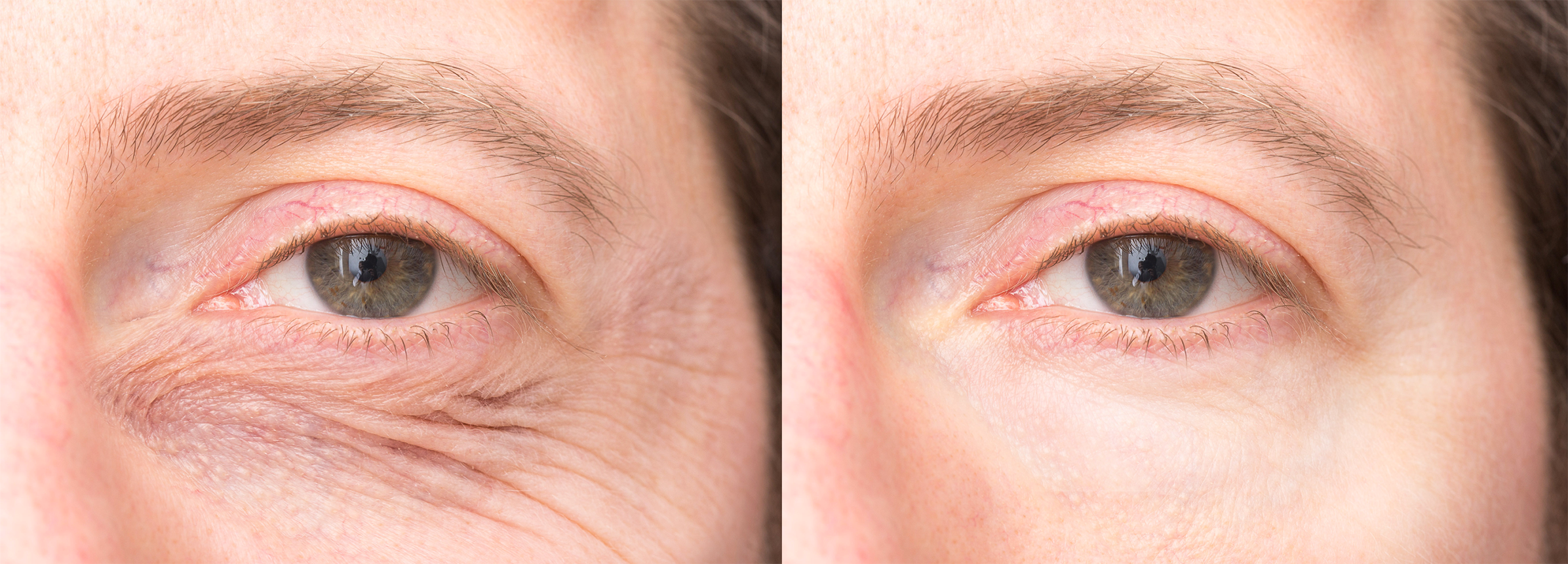 Long Island eyelid lifts before and after