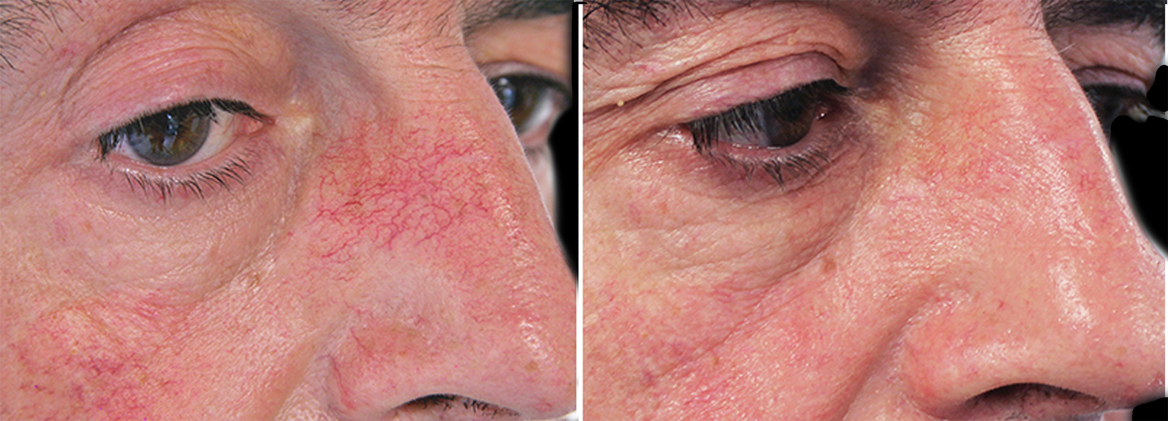 Long Island facial vein removal before after