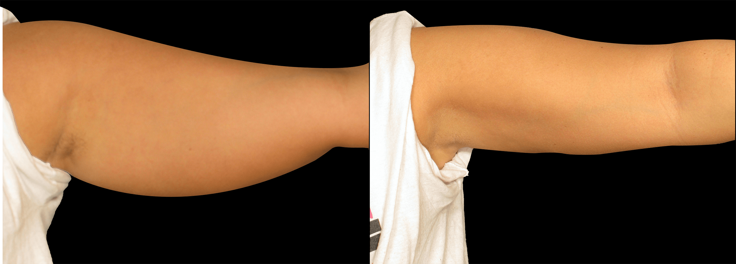 Long Island PERFECT BODY LASER CAVI-LIPO ARM REDUCTION