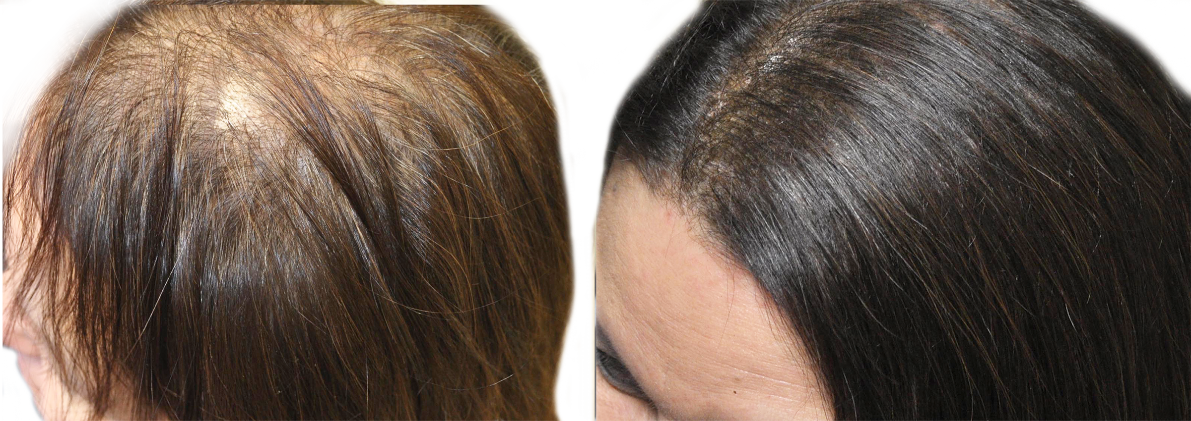 Long Island hair rejuvenation before and after
