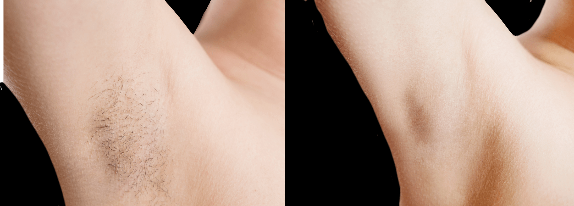 Long Island hair removal before and after