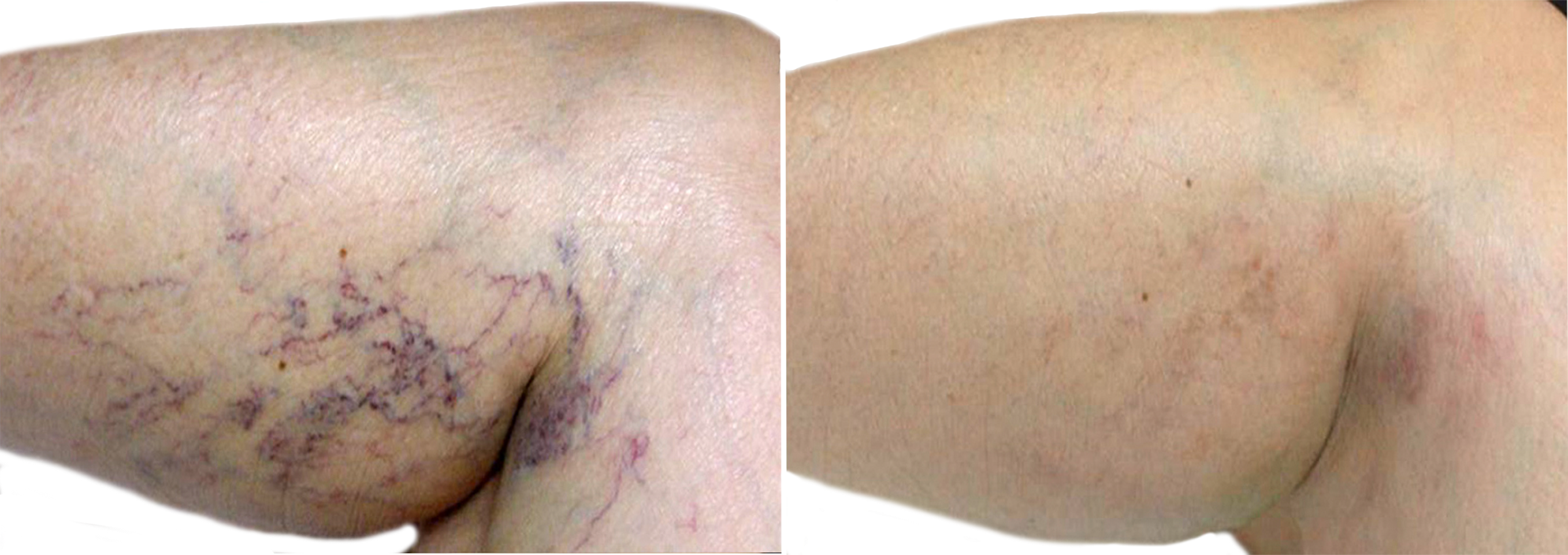 Long Island leg vein removal before after