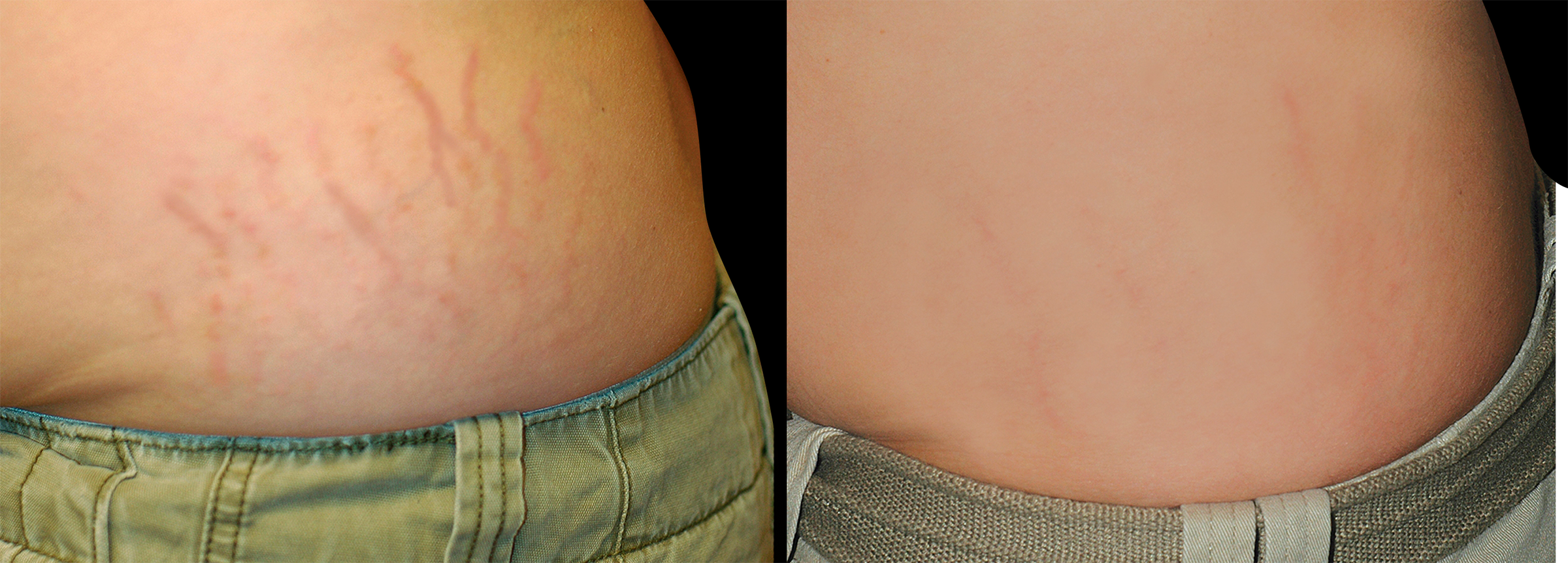 Long Island stretch mark removal before and after