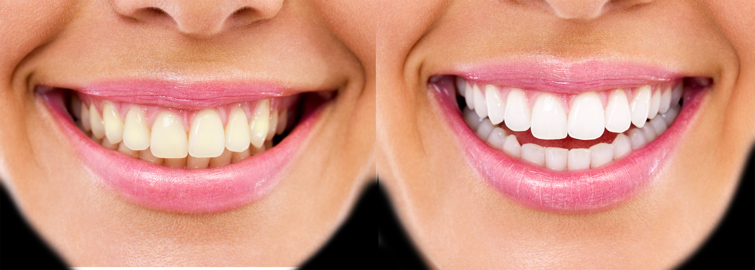 Long Island teeth whitening before and after