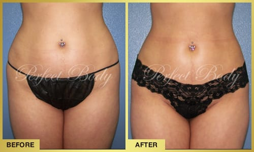 Body Reshaping & Contouring