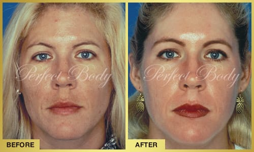 Color Correction & Skin Rejuvenation