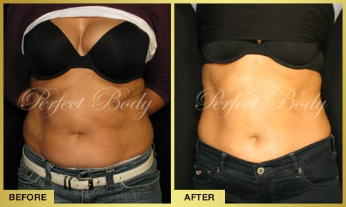 Fat Reduction Body