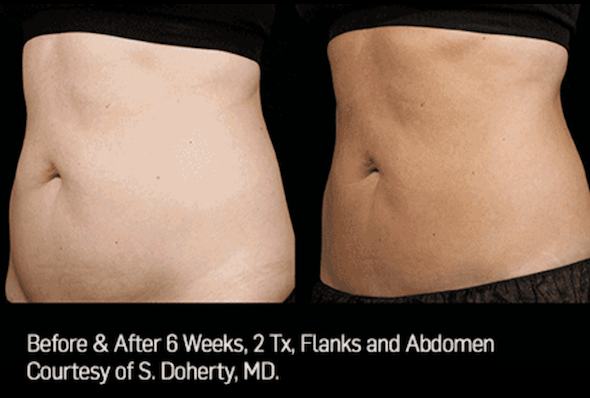 sculpsure_long_island_perfect_body_laser.png